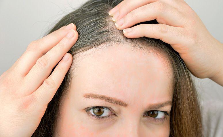 3 razones por las que tu cabello se vuelve blanco demasiado pronto